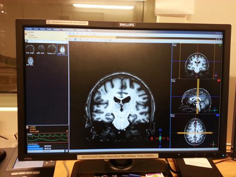 MRI onderzoek voor designvoorkeuren