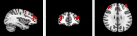 MRI Merel Bekking